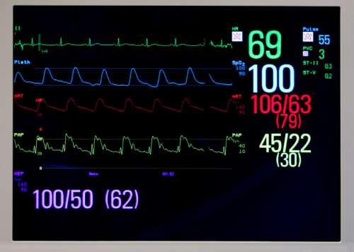 Blutdruckmessung Methoden Monitoranzeige Blutdruckkurve