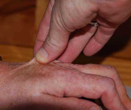 Hypotonie bei Exsikkose, stehende Hautfalten
