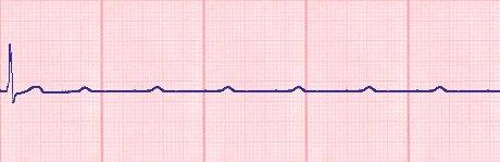 Lebensgefahr Herz, EKG AV-Block 3. Grades
