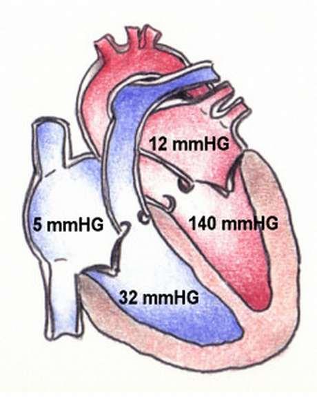 Physiologie Herz, Austreibungsphase