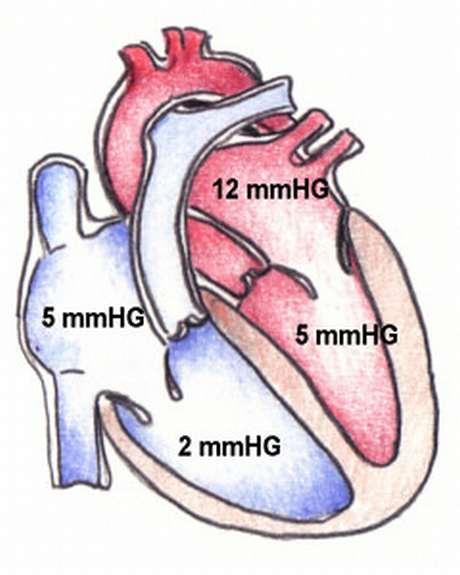 Physiologie Herz, F�llungsphase