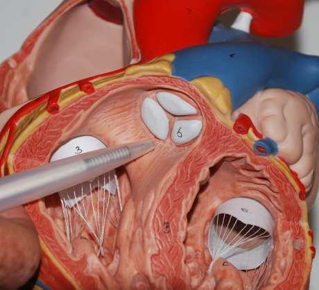 Anatomie Herz, Taschenklappe, Pulmonalisklappe