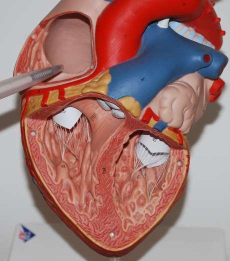 Anatomie Herz, rechter Vorhof, Atrium dexter