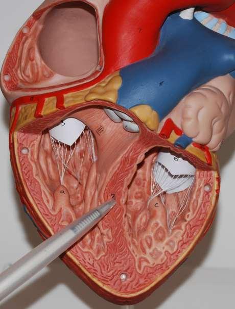 Anatomie Herz, Herzscheidewand Herzseptum