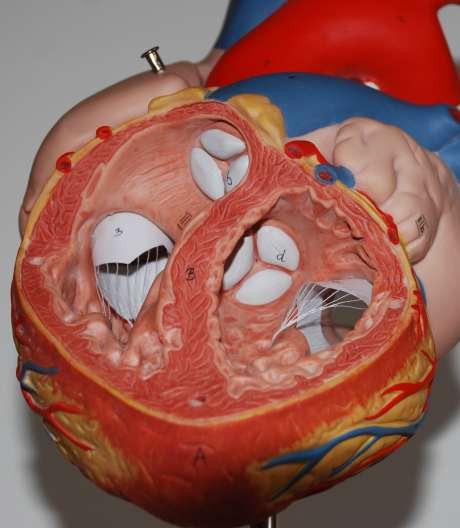 Physiologie Herz, Verschiebung der Ventilebene