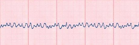 Lebensgefahr Herz, EKG Kammerflimmern