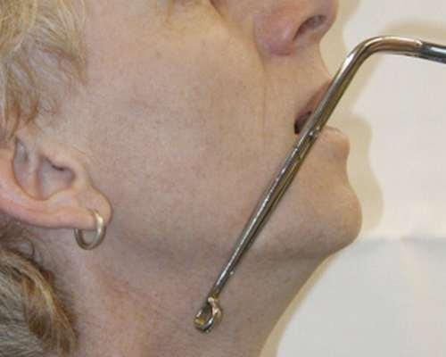Atemwege freimachen, Hilfsmittel Anwendung der Magill-Zange