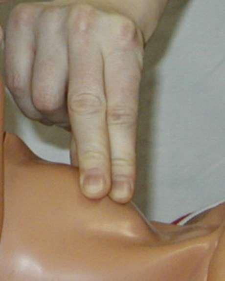 Atemwege freimachen, nasale Absaugung, Sellik-Handgriff