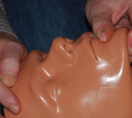 Mund-zu-Nase-Beatmung, Verschluss des Mundes