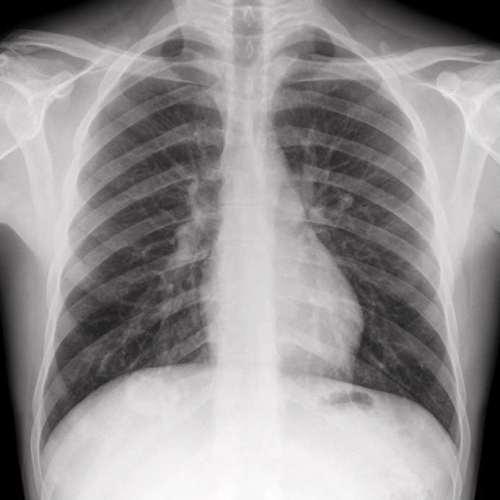 Was kostet eine rontgenaufnahme der lunge