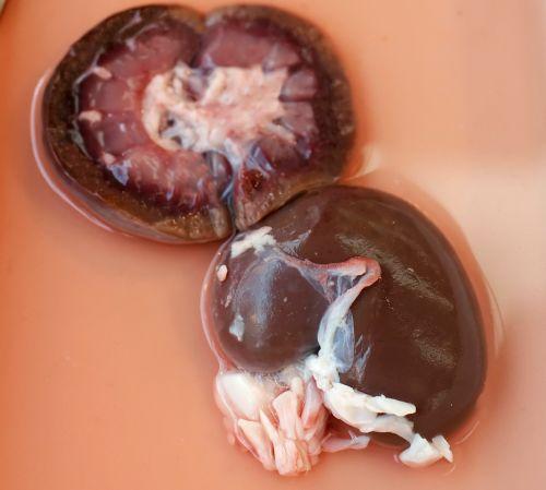 Die Nieren – äußere Gestalt
